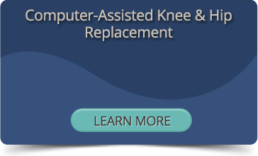 Computer Assisted Knee & Hip Replacement